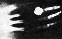 Az első röntgen-kép