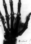 Röntgen kép