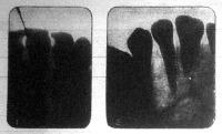 A foggyökér és a fog környékét alkotó csont gennyesedése