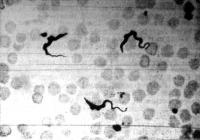 Az álomkór bacillusai