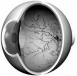 Zöldhályog (glaukóma)
