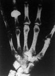 Röntgen-fénykép az emberi kéz csont vázáról