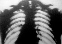 Mellkas Röntgen-fotoja