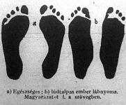 A lúdtalpas lábnyoma
