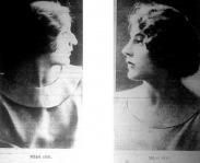 Orrműtét előtt és után