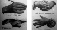 A kéz regénye