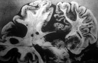 Az agy keresztmetszete